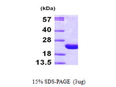 ARF6 Protein