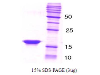 SNCB / Beta-Synuclein Protein