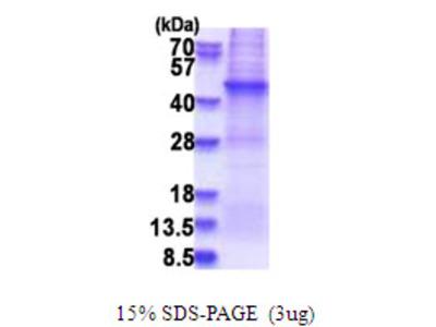 AFAP1 / AFAP Protein