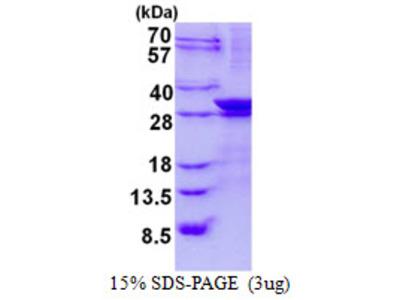 LIN7A Protein