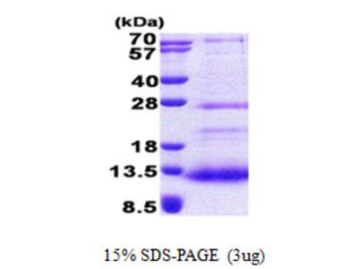 SPINK7 / ECRG2 Protein