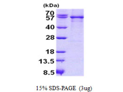 SERPING1 / C1 Inhibitor Protein