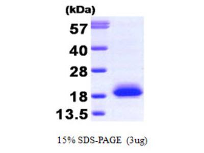 VILIP / VSNL1 Protein