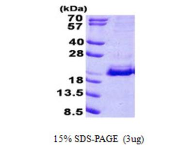 SRP19 Protein