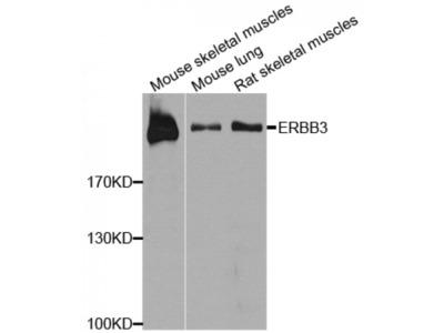 Anti-ERBB3 antibody