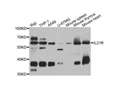 Anti-IL21R antibody