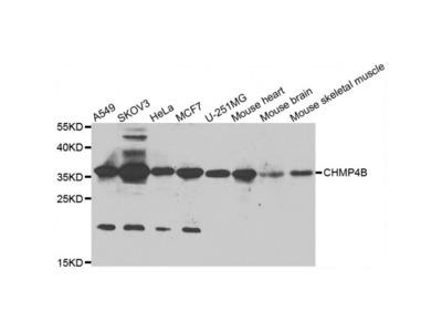 Anti-CHMP4B antibody (STJ29539)
