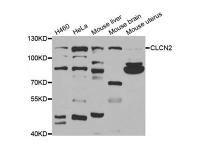 Anti-CLCN2 antibody