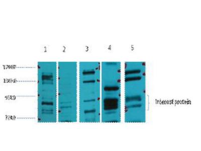 Anti-Glucocorticoid receptor antibody