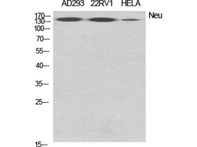 Anti-Neu antibody