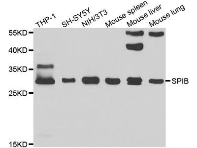 Anti-SPIB antibody