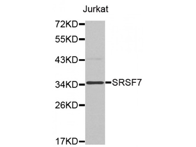 Anti-SRSF7 antibody