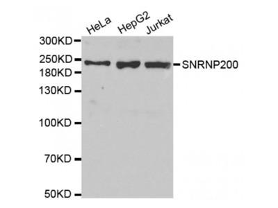 Anti-SNRNP200 antibody