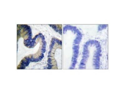 Anti-Phospho-4E-BP1 (S65) antibody