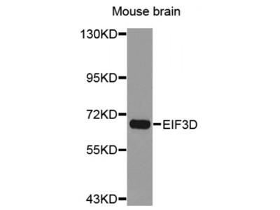 Anti-EIF3D antibody