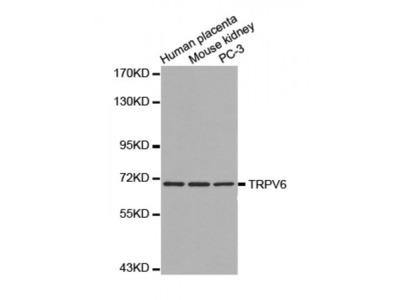 Anti-TRPV6 antibody
