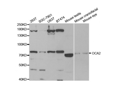 Anti-OCA2 antibody