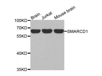 Anti-SMARCD1 antibody