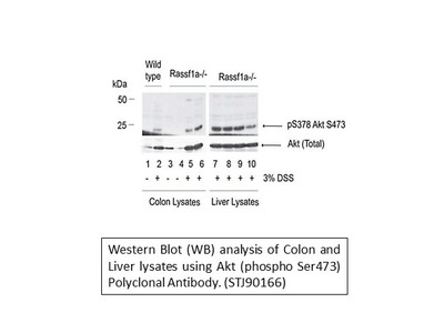 Anti-Phospho-Akt (S473) antibody