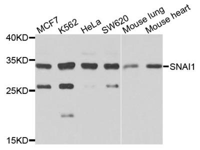 Anti-SNAI1 antibody