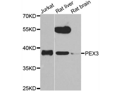 Anti-PEX14 antibody (STJ29475)