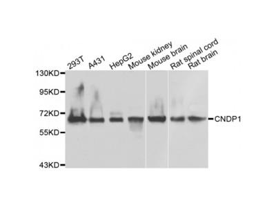 Anti-CNDP1 antibody