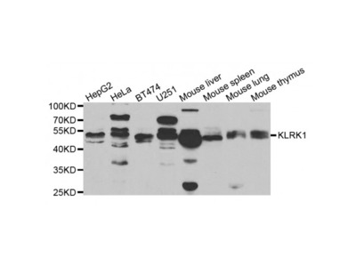 Anti-KLRK1 antibody