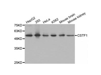 Anti-CSTF1 antibody