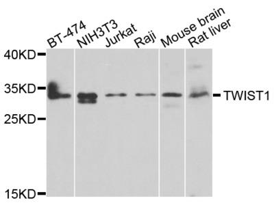 Anti-TWIST1 antibody