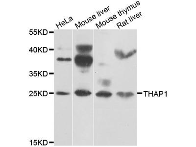 Anti-THAP1 antibody (STJ29608)