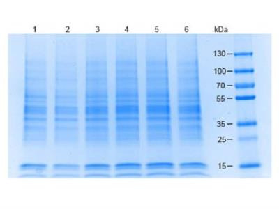 293 Whole Cell Lysate