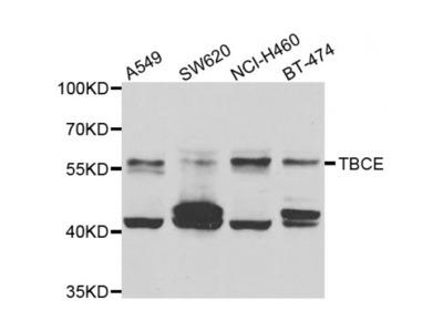 Anti-TBCE antibody