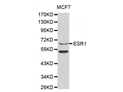 Anti-Estrogen Receptor α antibody