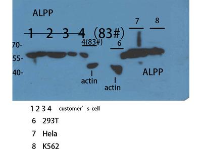 Anti-ALPP/ALPPL2 antibody