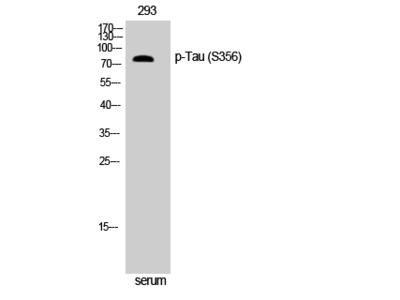 Anti-Phospho-Tau (S356) antibody
