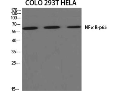 Anti-NFκB-p65 antibody