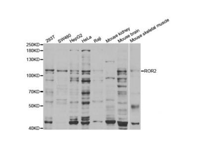 Anti-ROR2 antibody
