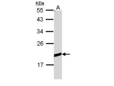 BCL2 antibody