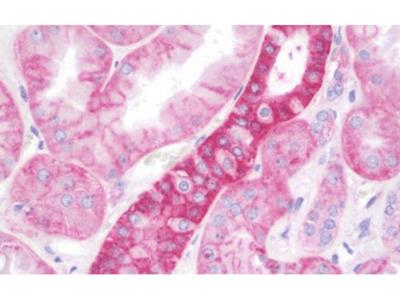 RAB1A antibody