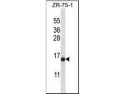 HIST2H2AB antibody