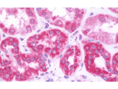 LTA antibody