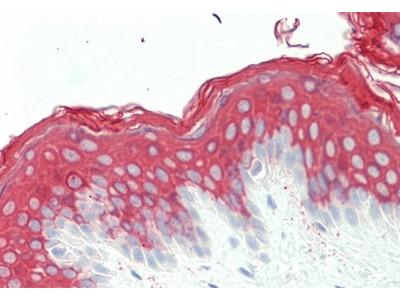 KRT10 antibody