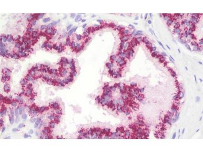 GP73 antibody