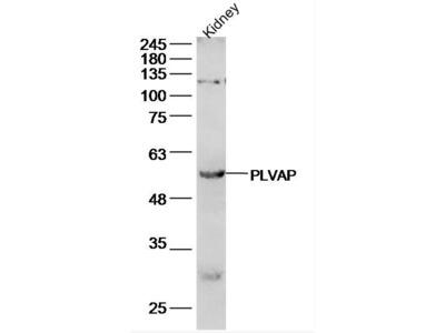 PLVAP antibody