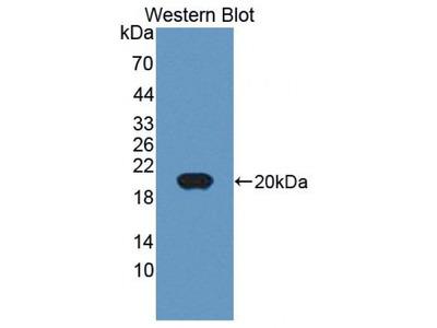 Chordin Like Protein 2 (CHRDL2) Antibody