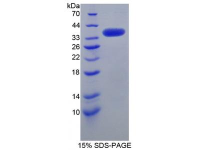Human SRSF Protein Kinase 3 (SRPK3) Protein