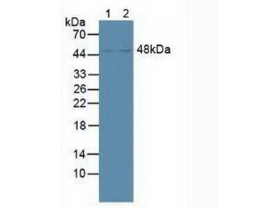 Farnesoid X Receptor (FXR) Antibody
