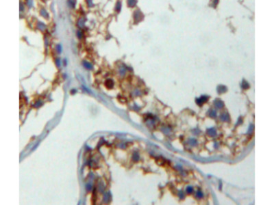 Cbp/p300 Interacting Transactivator, With Glu/Asp Rich Carboxy Terminal Domain 1 (CITED1) Antibody