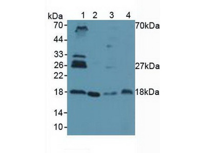 Ubiquitin Conjugating Enzyme E2I (UBE2I) Antibody