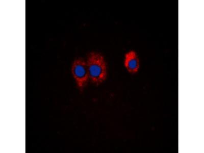 PI3K p85 alpha / p55 gamma (pY467 / 199) Antibody